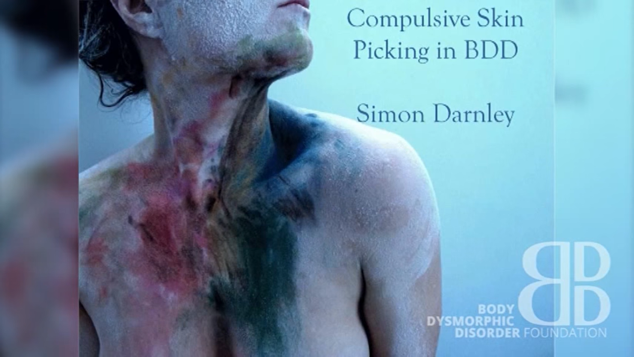 Compulsive Skin Picking